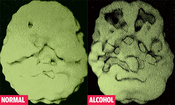 normal-alcohol-brain