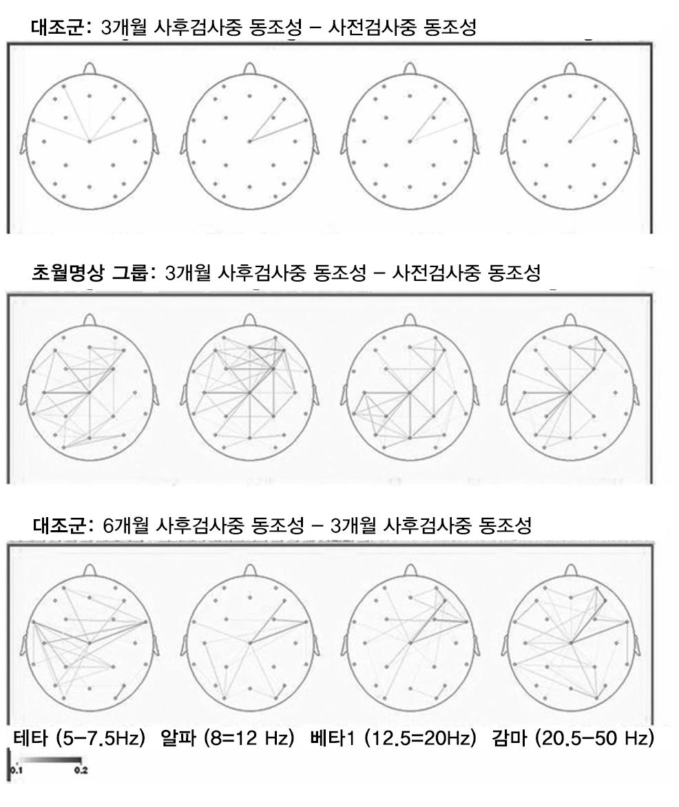 ADHD-EEG-coherence