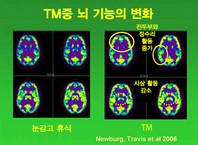 neural-imaging